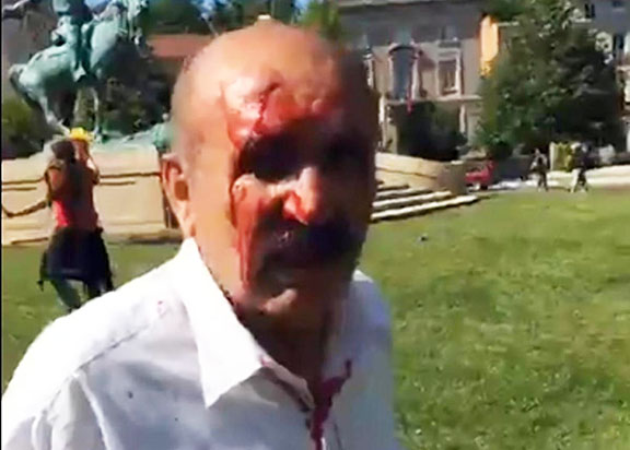 A protester was bloodied as a result of an attack by pro-Erdogan group