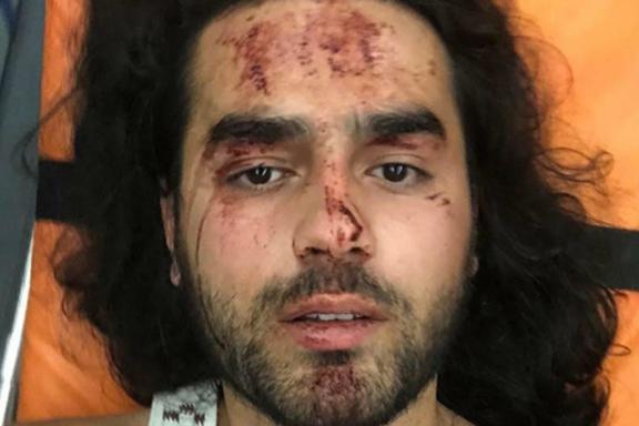 Robert is one of the people beaten in Shurnukh village in Syunik province